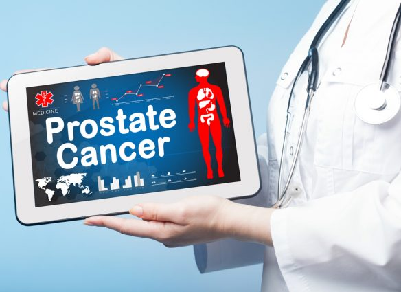 Prostate Cancer Visual Representation